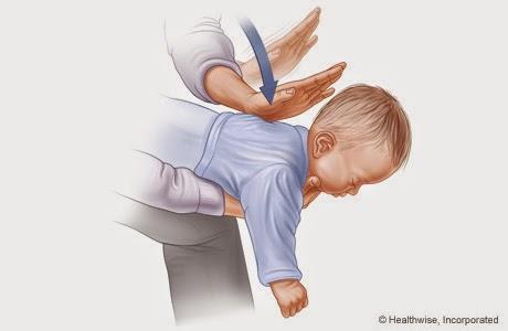 Ce faci cand se ineaca copilul ? De ce e bine sa cunosti manevrele de prim ajutor pentru sugari si copii
