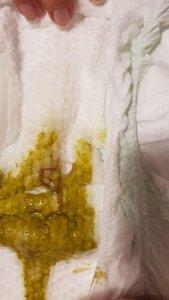 Scaunul și urina copilului alăptat, Scaunul și urina copilului alăptat (FOTO)